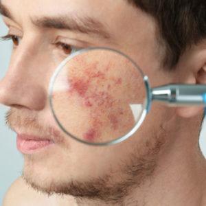 Acne Scars2
